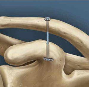 Treating shoulder seperation